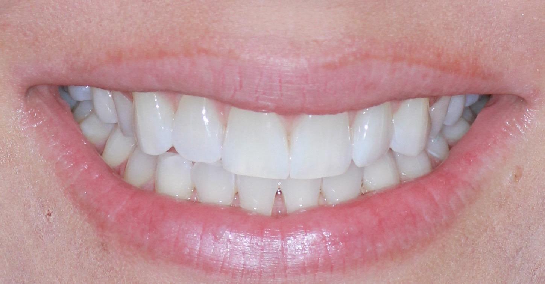 KOR Teeth Whitening Promotion